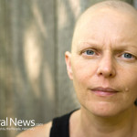 Cancer-Woman-Bald-Chemotherapy-Sick