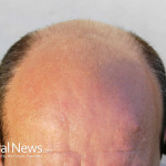 Man-Bald-Hair-Loss-Close-up