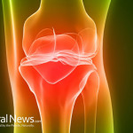 Arthroscopic-Knee-Arthritis-Pain