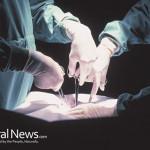 Heart-Surgery